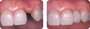 Before and After Hillsborough Dentist Dr. Sinha adds a dental implant